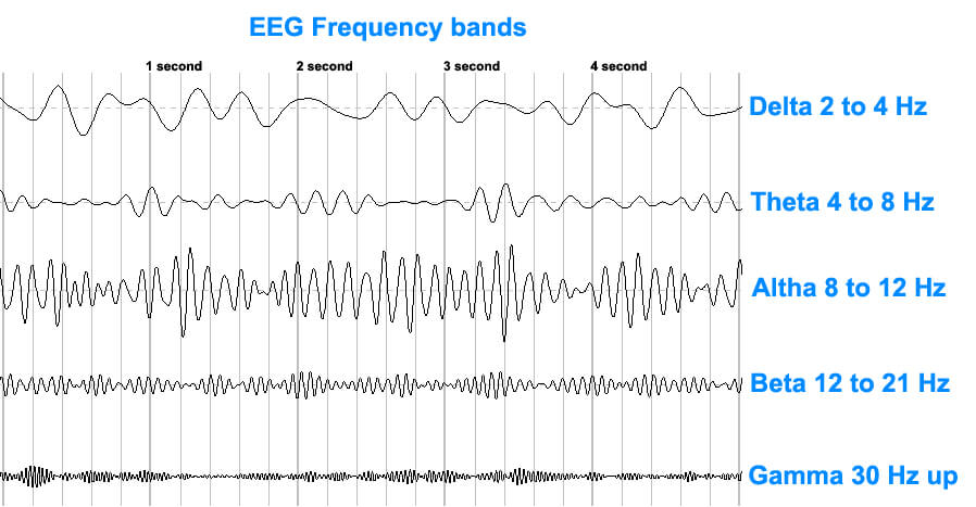 EEGFrequencybands